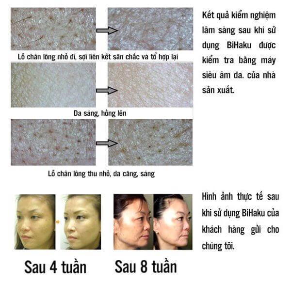 kiem-chung-lam-sang-bihaku-collagen-premium