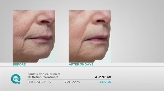 Paula's Choice Clinical 1% Retinol Treatment có tốt không