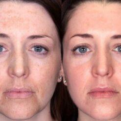 review Paula's Choice Clinical 1% Retinol Treatment