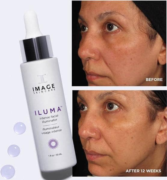 iluma intense facial illuminator reviews
