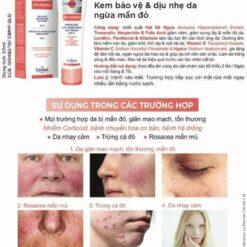 kem dưỡng dermacos anti redness